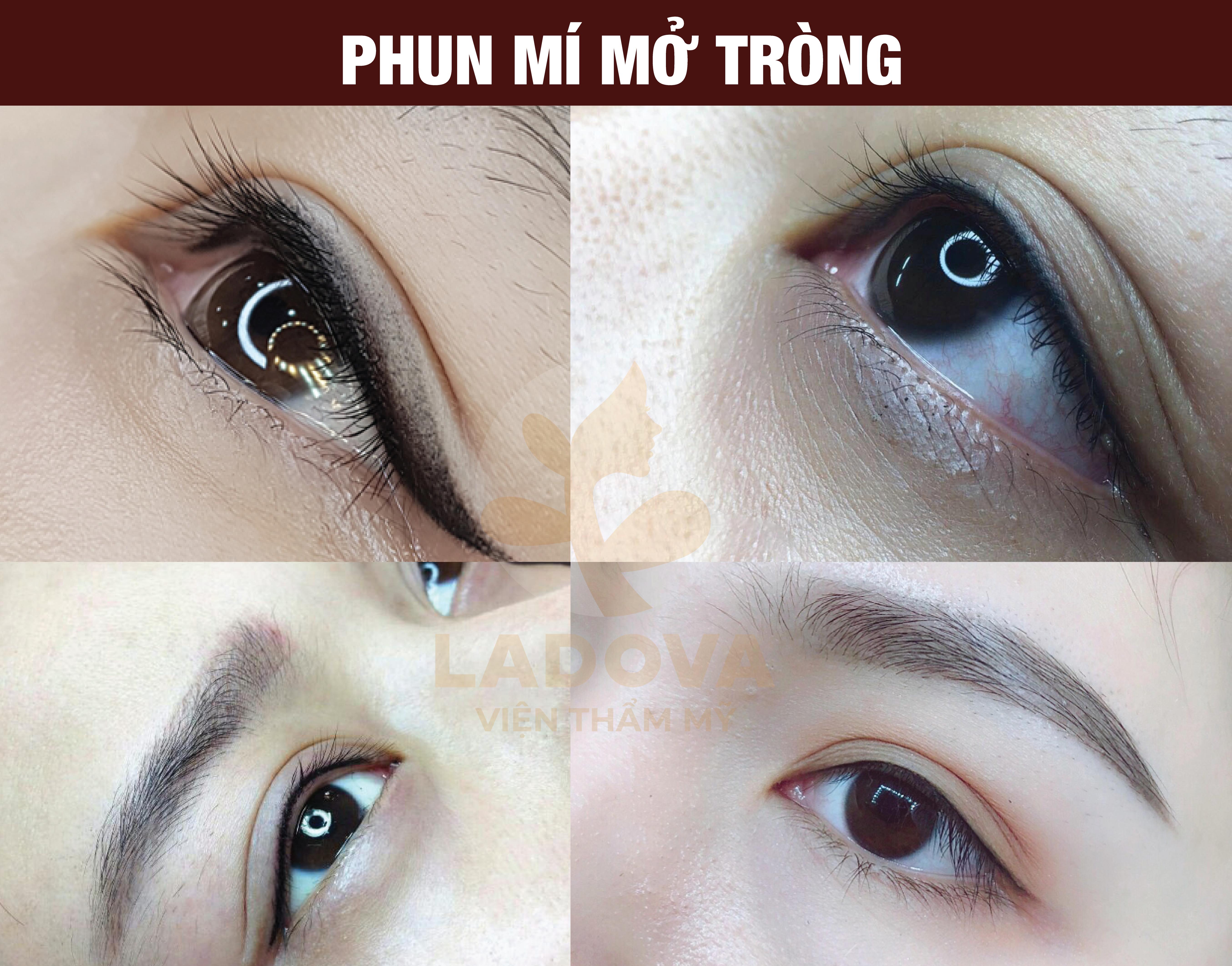 phun-mi-mo-trong