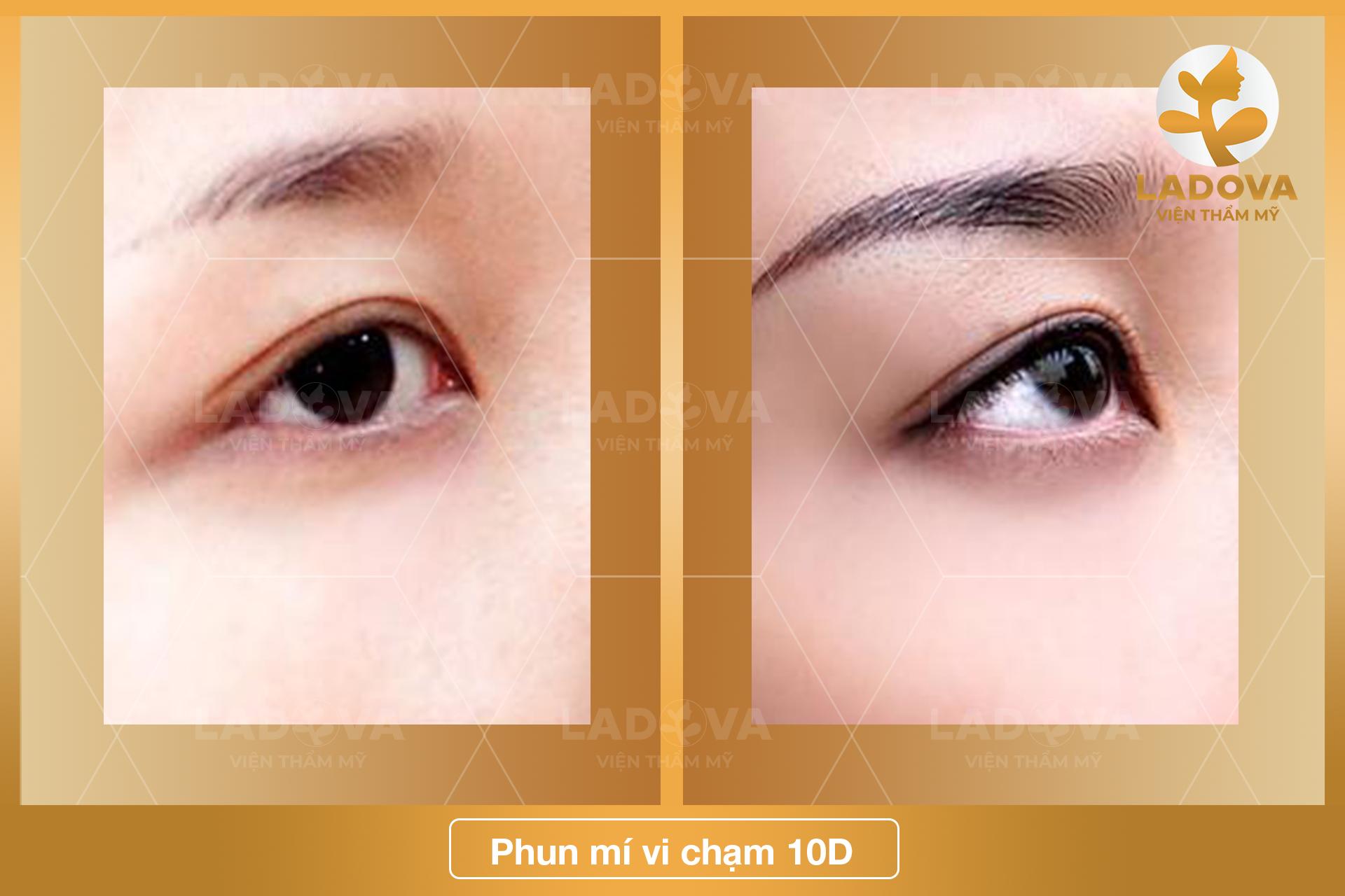 phun-mi-vi-cham-10d-ladova