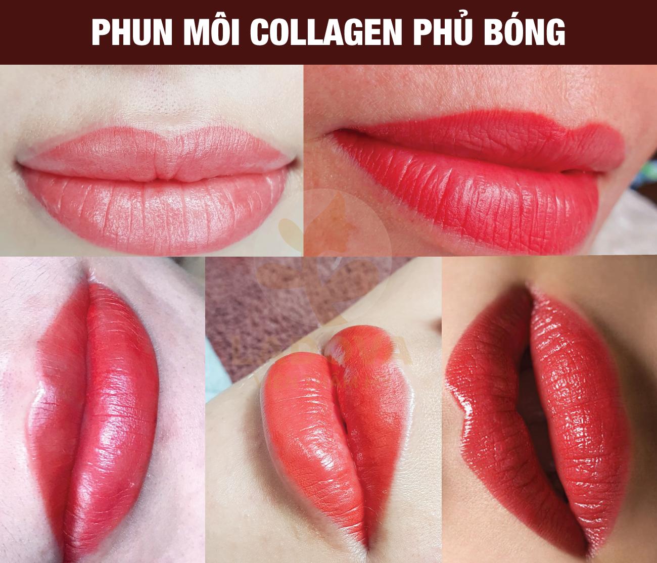 phun-moi-collagen-phu-bong