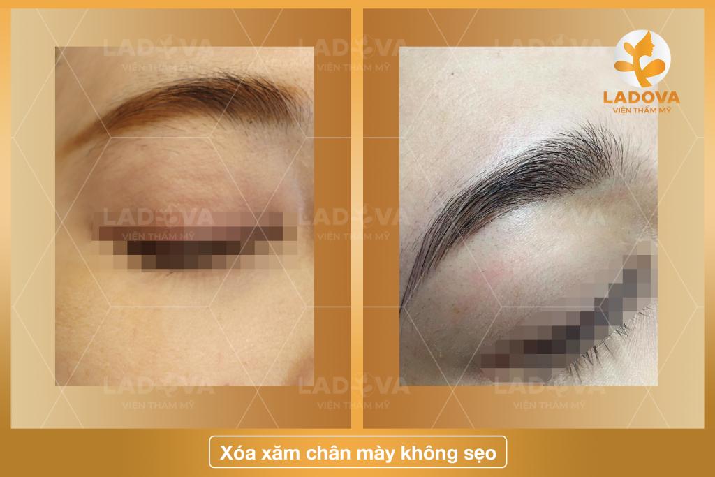 XOA-XAM-LONG-MAY-KHONG-SEO