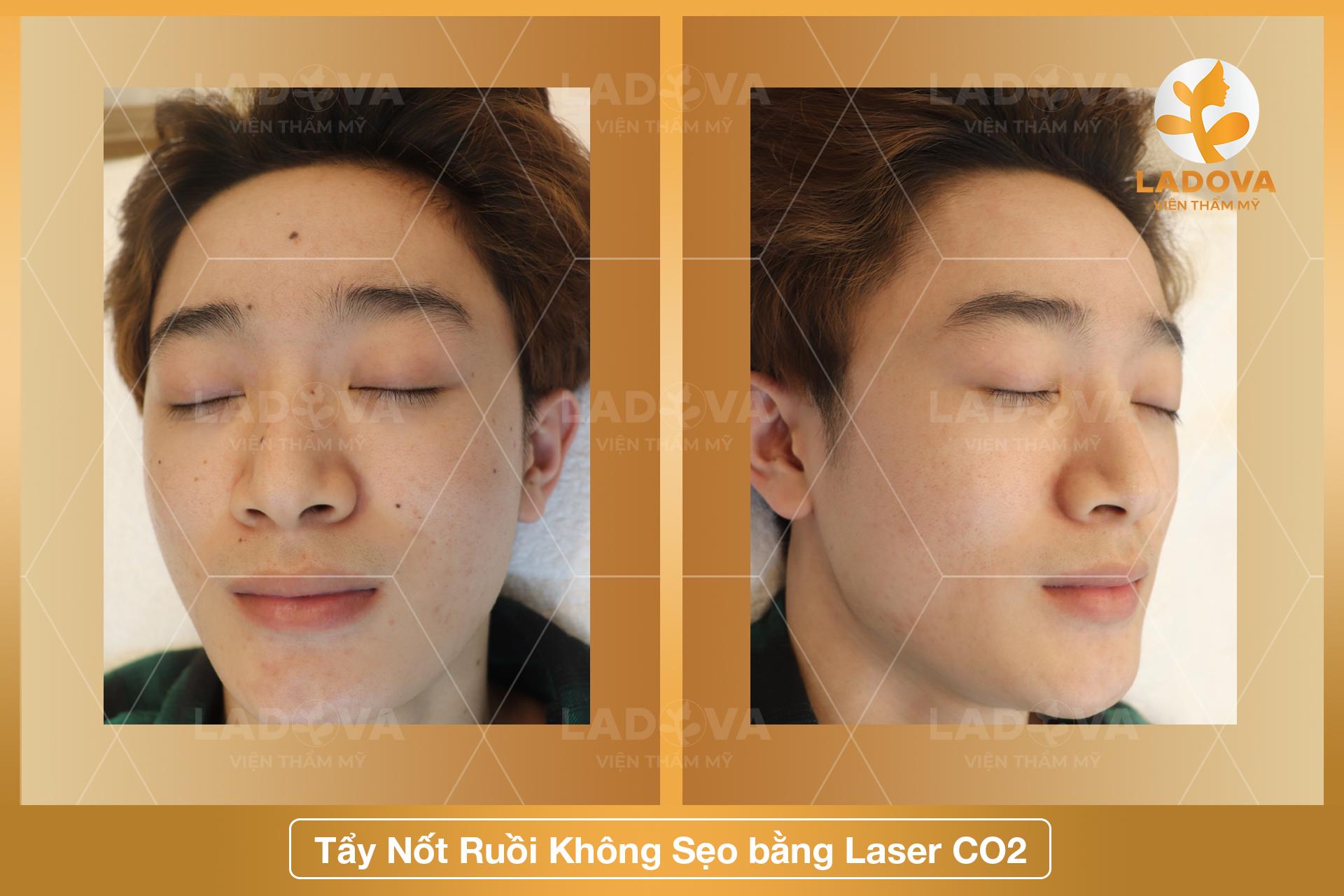 tay-mun-ruoi-bang-laser-co2