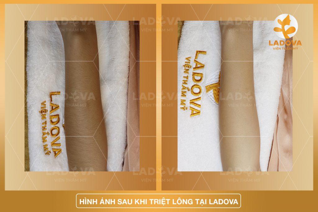 TRIET-LONG-TAY-VINH-VIEN