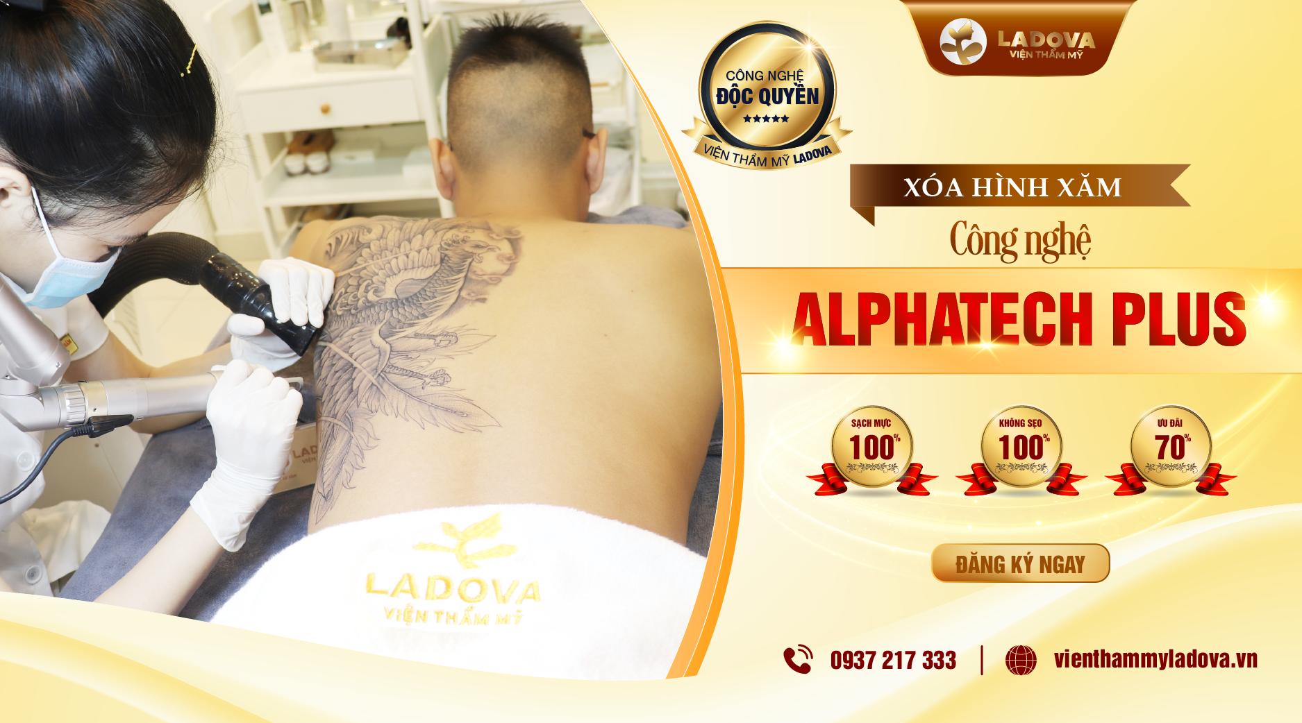 XOA-XAM-ALPHATECH-PLUS-1-01